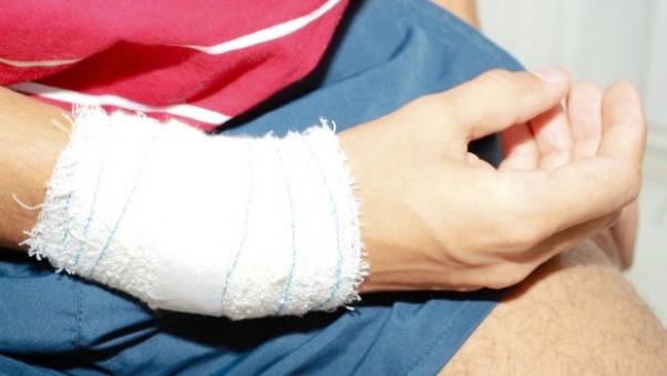 Jovem diz que foi agredido em festa em 2012 em Novo Hamburgo (Foto: Jeferson Paz/Arquivo pessoal)