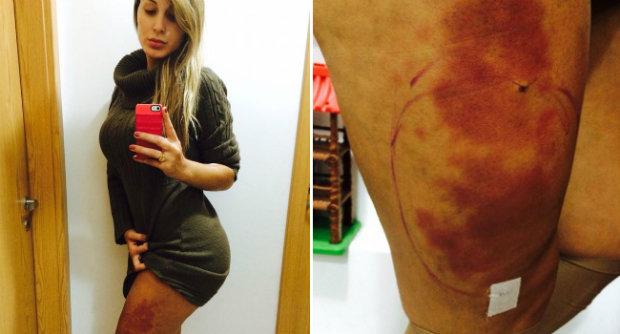 Nas redes sociais, Andressa exibiu edema nas pernas, em decorrência da aplicação do hidrogel (Foto: Reprodução/Instagram)