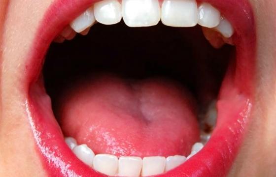 Sexo oral sem preservativo pode aumentar risco de câncer de boca (Foto: Divulgação)