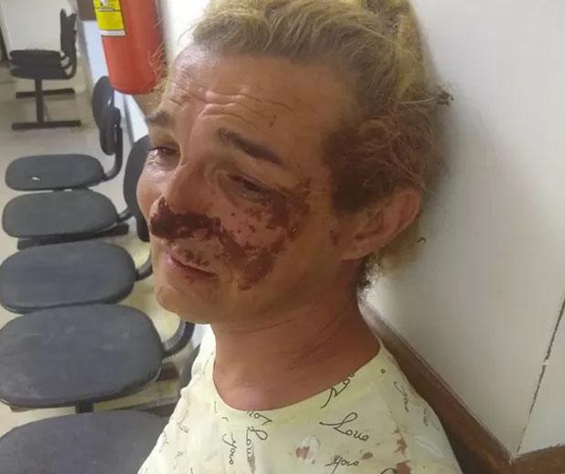 Barbara ficou com vários hematomas pelo corpo — Foto: PC de Souza/Reprodução